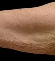 Cellulitis bovenarmen