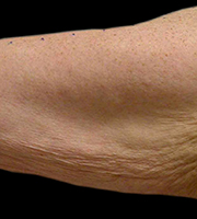 gerimpelde huid armen